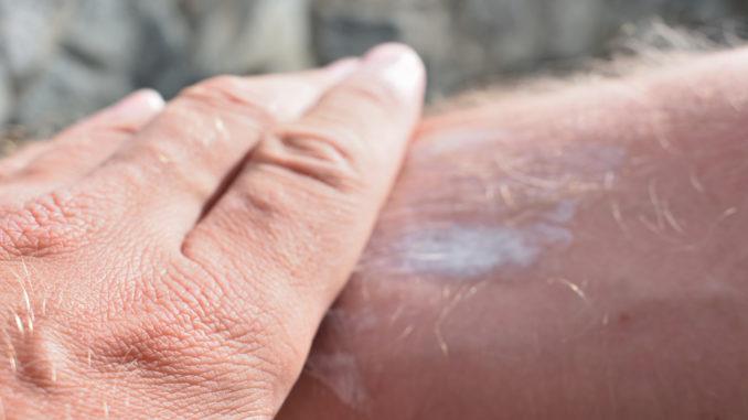Sonnencreme gehört zur Hautpflege im Sommer für viele einfach dazu - aber dürfen alte Kosmetika aus der letzten Saison wirklich bedenkenlos benutzt werden? 😎☀️